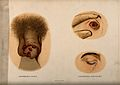 A penis with a skin disease on the glans; and two examples o Wellcome V0010273.jpg