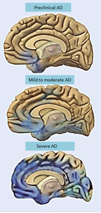 Alzheimer's Disease Neuroimaging Initiative - Figure 1: AD progresses through the brain in a specific characteristic pattern