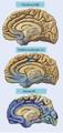 Alzheimers disease progression-brain degeneration.PNG