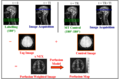 Arterial Spin Labeling-experiment.png