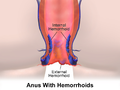 Blausen 0408 Hemorrhoids.png