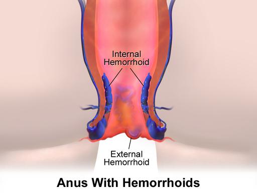 Blausen 0408 Hemorrhoids