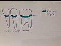 Cervical Margin.jpg