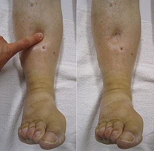 Image result for right heart failure edema