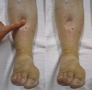 Edema abnormal accumulation of fluid in the interstitium