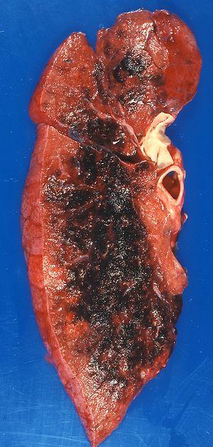 Cytomegalovirus pneumonia