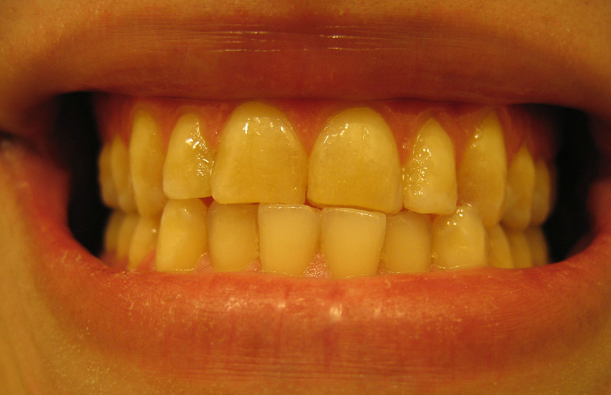 Dental Midline