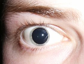 Dilated pupils 2006 (cropped).jpg