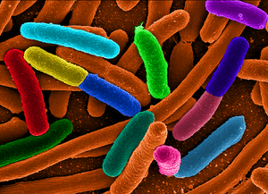 These are e Coli.