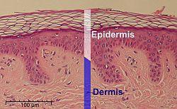 Epidermis-delimited.JPG