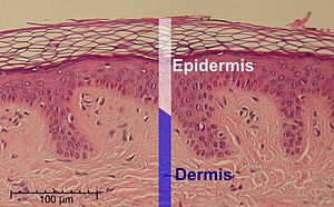 Epidermis - Histologic image of epidermis, delimited by white bar.
