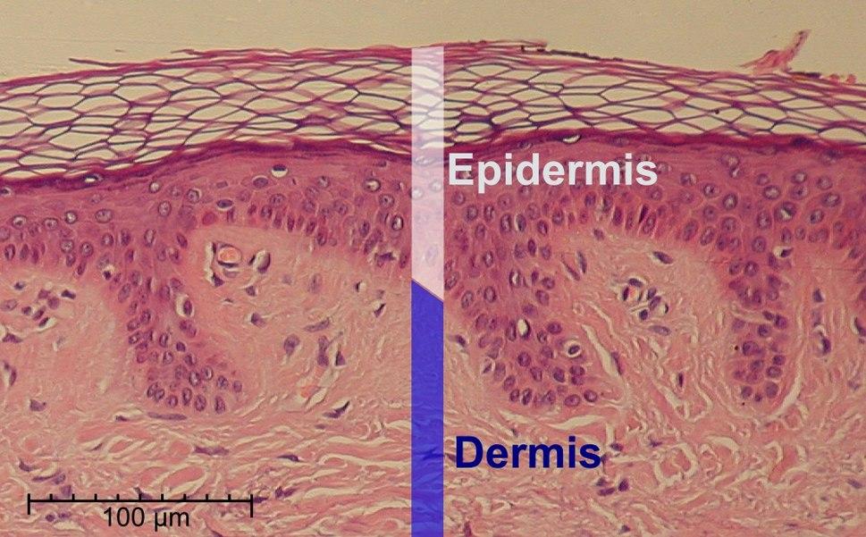 Epidermis-delimited
