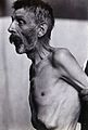 Friern Hospital, London; an old man, emaciated, viewed from Wellcome V0029616.jpg