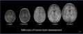 Human brain development 1wk-3mo-1yr-2yr-10yr-T1W-MRI.PNG