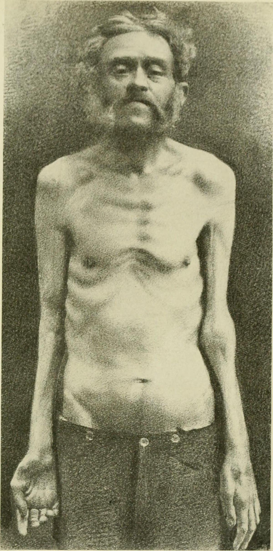Progressive muscular atrophy - Wikipedia