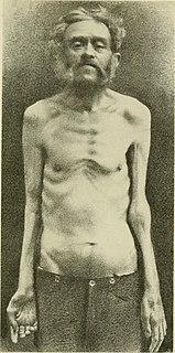 Progressive muscular atrophy