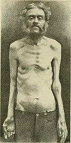 wiki Spinal muscular atrophy