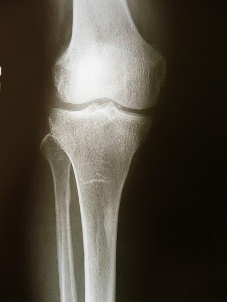 fractura colli femoris tratamentul bursitei unguentului articulației cotului