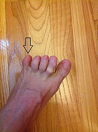 The fifth toe on the left foot of an adult male.