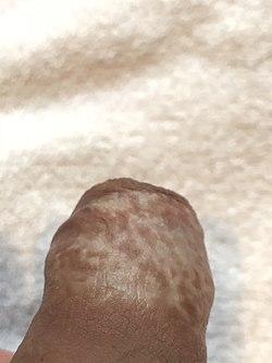 lichen sclerosus behandling män