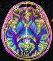 Max contrast Brain MRI 131058 rgbce.png