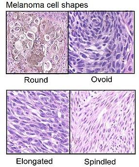 Melanoma cell shapes.jpg