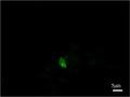 Parasite150075-fig2 Toxoplasma gondii in Giant panda.tif