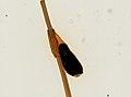 Pthirus pubis (YPM IZ 093665).jpeg