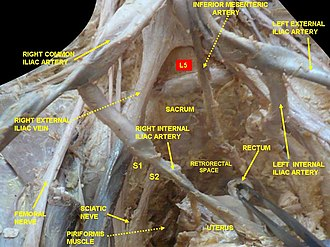 External iliac artery - Image: Slide 1ewew