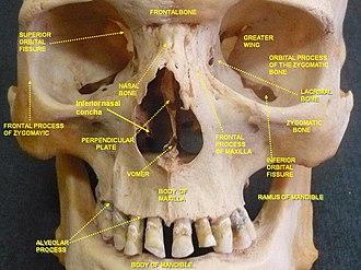 Inferior nasal concha - Image: Slide 2hal