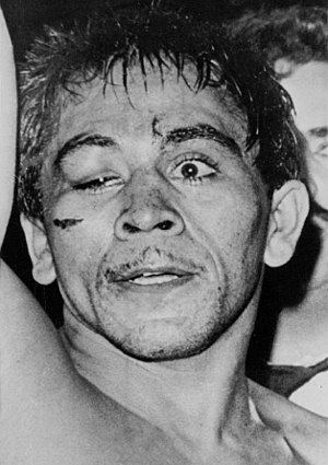 Vicente Saldivar - Saldivar after the bout with Raul Rojas in 1965
