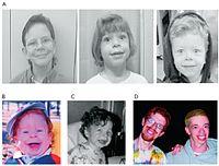 Williams syndromeCCBY.jpg