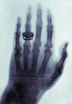 100 Photographs that Changed the World - Image: X ray by Wilhelm Röntgen of Albert von Kölliker's hand 18960123 01