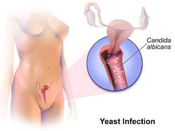 svampinfektion hos män