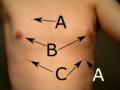 20060726 supernumerary nipples torso w text.png