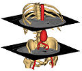 3D surface models from abdominal CT .jpg