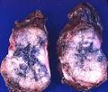 Adenocarcinoma (3980904887).jpg