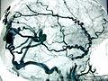 Angiome cérébral.JPG