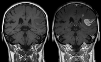 MRI contrast agent - Effect of contrast agent on images: Defect of the blood–brain barrier after stroke shown in MRI. T1-weighted images, left image without, right image with contrast medium administration.