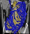 Bowel vasculature.jpg