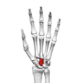 Capitate bone (left hand) 01 palmar view.png
