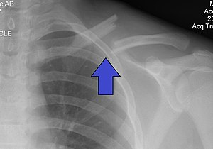 Clavicle fracture - Wikipedia