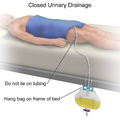 Closed Urinary Drainage.png
