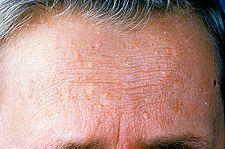 Trichilemomy na čele