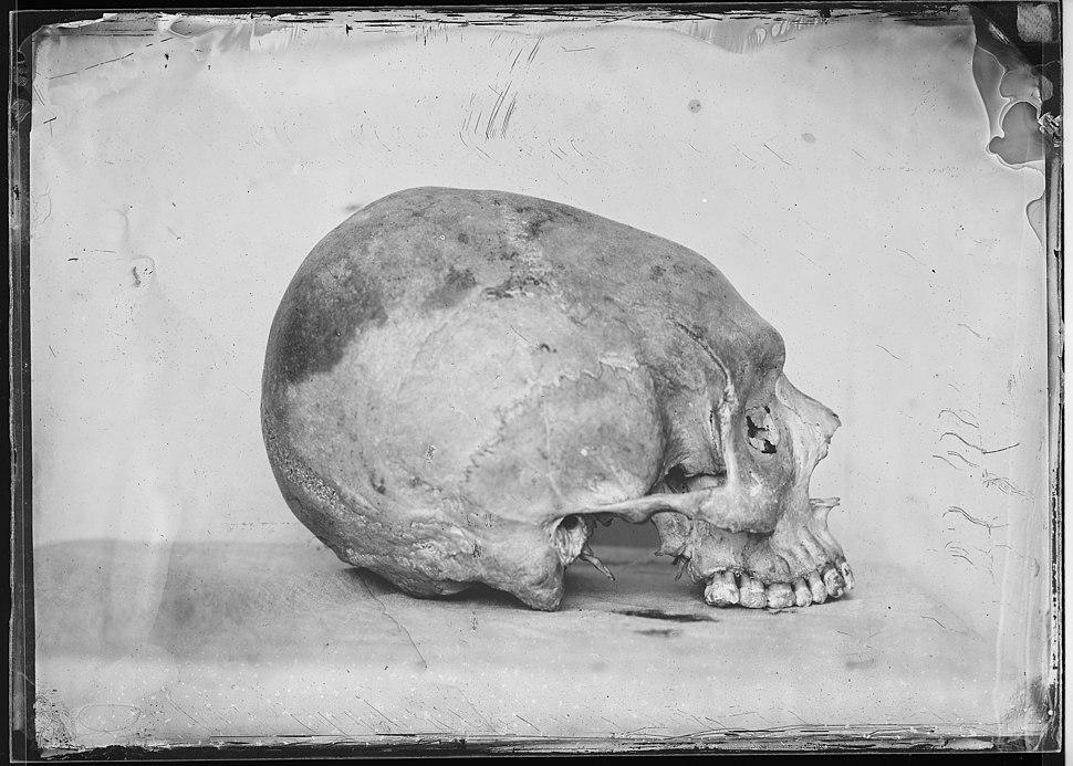 Crâne toulousain déformé - Fonds Trutat - MHNT.PHa.138.B66.155