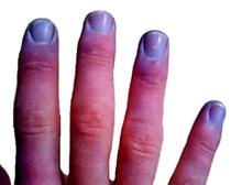 cyanóza na koncích prstů