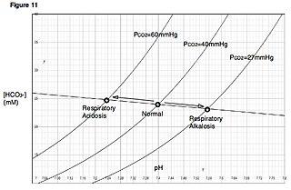 Respiratory acidosis Medical condition