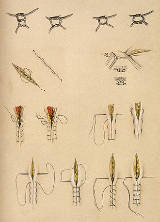 Surgical knot - Historical diagrams illustrating various surgical stitches and knots