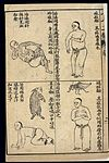 Early C20 Chinese Lithograph; 'Fan' diseases Wellcome L0039468.jpg
