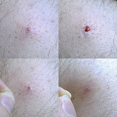 severe ingrown pubic hair treatment